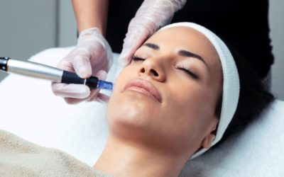 What Is a Vampire Facial? What You Need to Know About Microneedling With PRP (Platelet Rich Plasma)